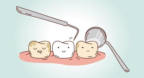 How Preventative Dentistry Works
