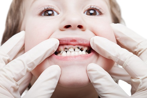 Prevent Tooth Decay in Babies and Toddlers