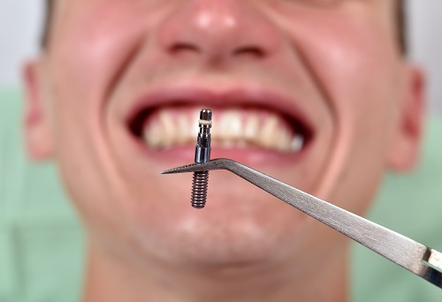 Is There an Age Limit for Dental Implants