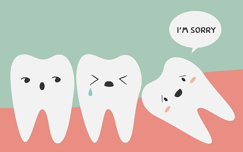 Myths About Wisdom Tooth Extraction