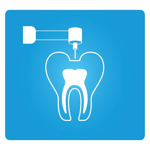 Root Canal Treatment can Save a Tooth