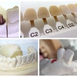 Will Cosmetic Dental Services Become a Major Trend in Perth by 2020?