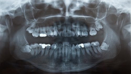 Emergency Dentists For Wisdom Teeth Removal