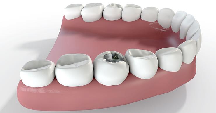 Oral fillings dental