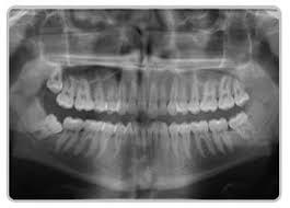 Wisdom Teeth Removal Perth