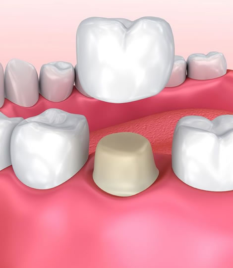 Crowns and Veneer Dental treatment