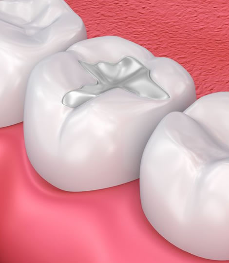 Closed-up of an animated teeth with a restorative fillings which is one of the services provided by eDental Perth.