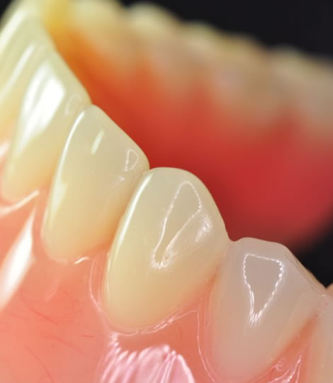 Closed-up of an artificial teeth that is called dentures which is being used in eDental Perth.