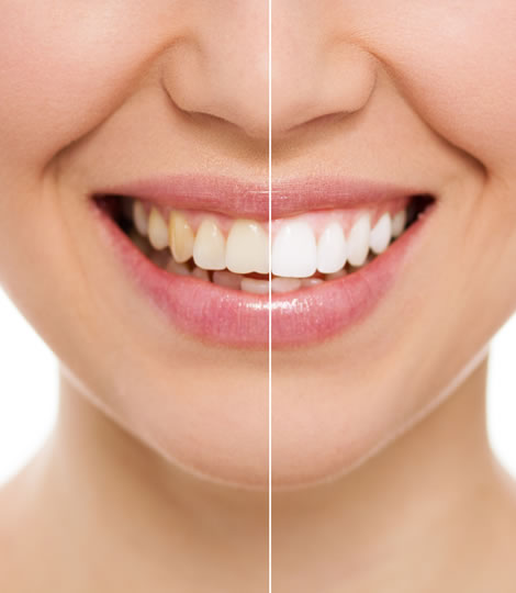 Closed-up of a human teeth which is differentiated into two parts with white line in the middle. Left side having a yellow teeth and on the right side having a teeth whitening by eDental Perth.