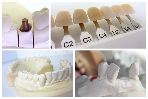 Different types and set of cosmetic teeth and that represents the