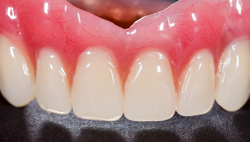 Closed-up of a clean and newly set of a denture and that represents the