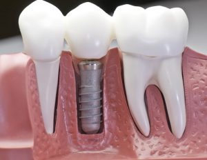 Closed-up of an animated teeth with 1 dental implant and as the header image of