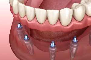 Animated All-On-4 implants on gums and teeth and that represents the