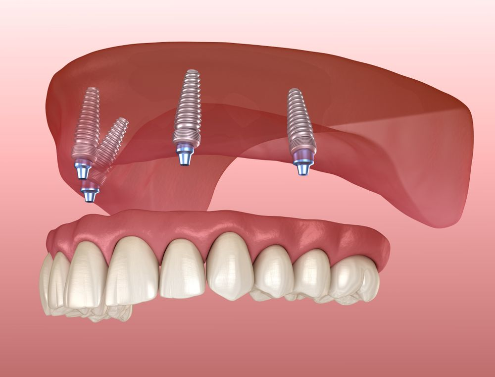 Animated All-On-4 dental implants on gums and teeth and that represents the